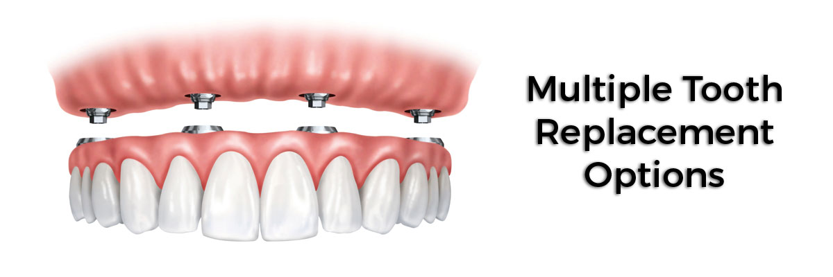 Huntsville Multiple Teeth Replacement Options